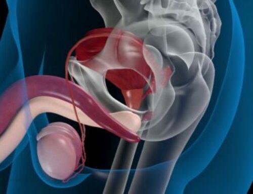 Fisioterapia tras Cirugía de Próstata